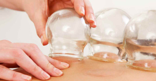 Cupping Therapy Benefits for Athletes