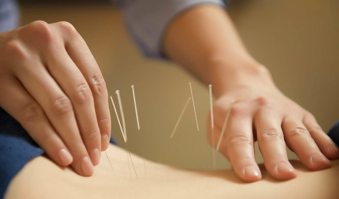 The Wonderful Benefits of Acupuncture