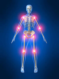 Benefits of acupuncture for arthritis