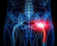 Benefits of acupuncture for sciatica