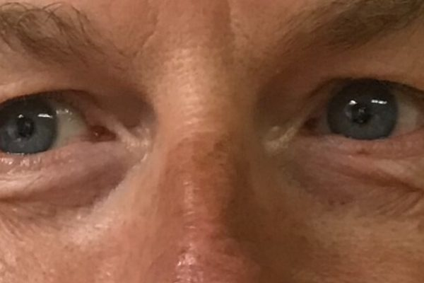 Brian eyes before