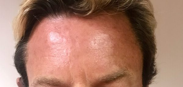 Brian forehead after