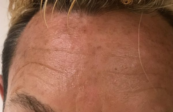 Brian forehead before