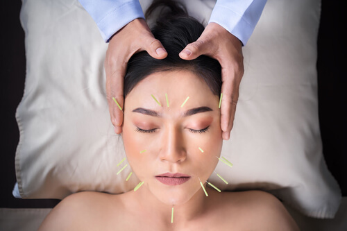 Benefits of Cosmetic Acupuncture: 5 Reasons it's Not Scary!